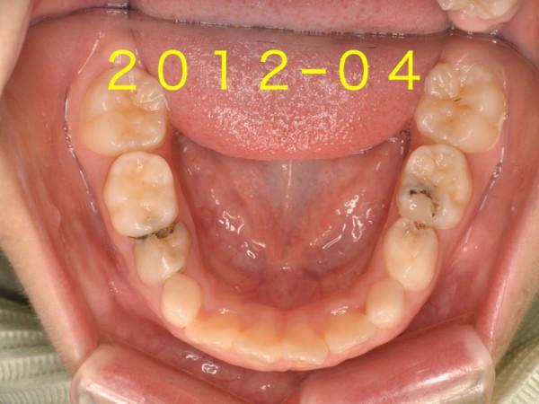 下の前歯.002