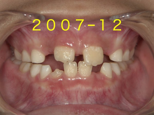 歯並び成長.003