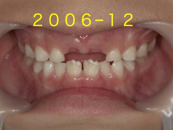 歯並び成長.002