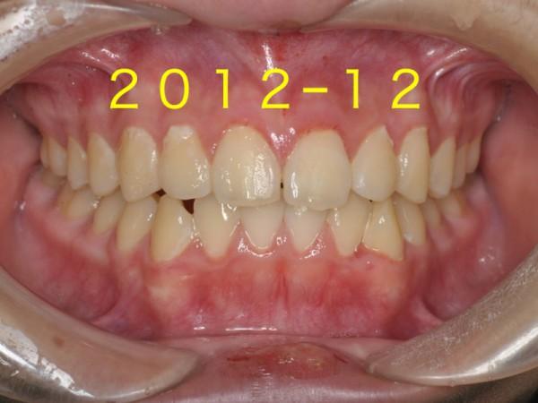 歯並び成長.004
