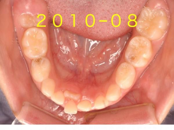 下の前歯.001
