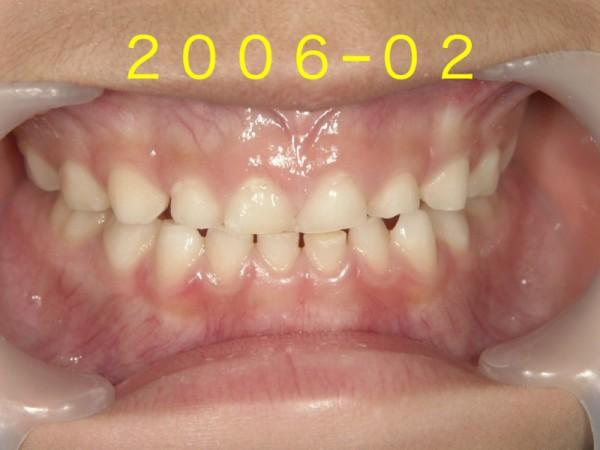 歯並び成長.001